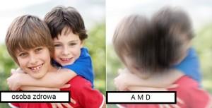 pogorszenie widzenia AMD
