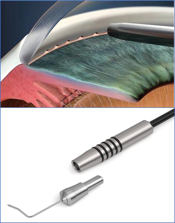 laseroterapia jaskry HFDS